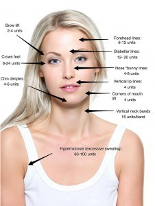 "How does BOTOX work? Botox is called ""preventative"" injections"