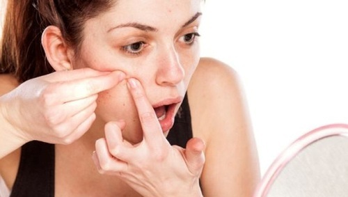Go back to nice and clean skin! How to get rid of acne marks.