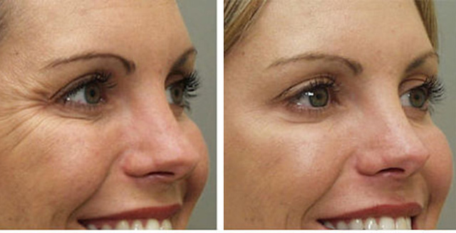Botox Isn't Just For Wrinkles Anymore! | Clinic Libessart (13770)