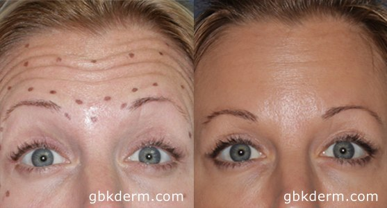 Before & After Forehead Wrinkle Treatment | San Diego Botox (13773)