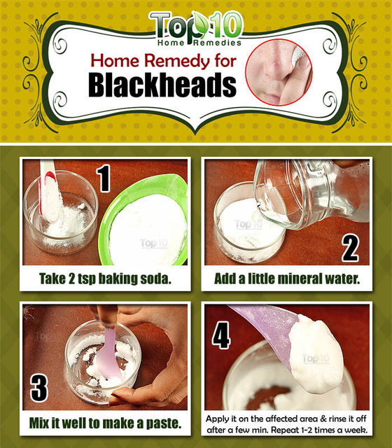 Home Remedies to Get Rid of Blackheads Fast   Top 10 Home Remedies (16368)